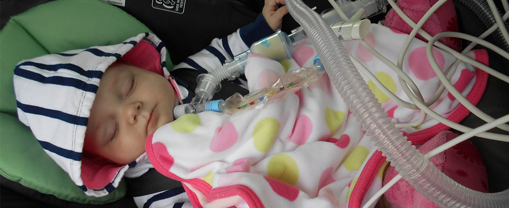 A baby sleeping peacefully in a striped hooded sweatshirt and a polka-dot blanket hooked up to medical equipment.